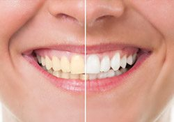 Closeup of teeth half before and half after teeth whitening