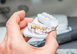 Person holding teeth model of bridges
