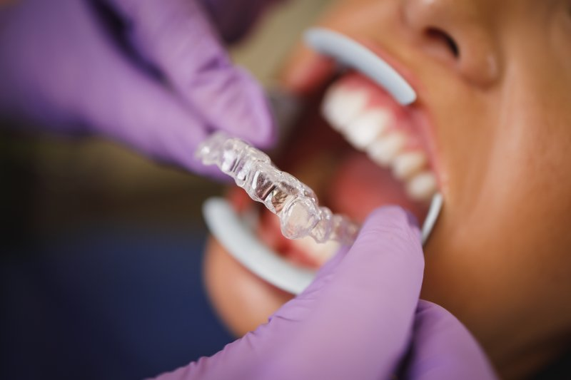 dentist placing Invisalign aligner on patient